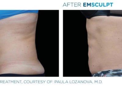 Emsculpt_PIC_Ba-card-female-abdomen-022_ENUS100