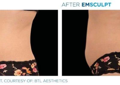 Emsculpt_PIC_Ba-card-female-abdomen-025_ENUS100