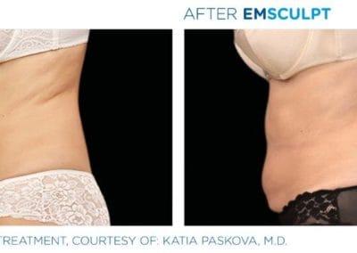 Emsculpt_PIC_Ba-card-female-abdomen-030_ENUS100