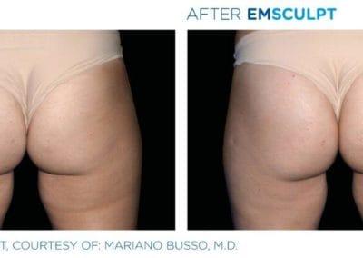 Emsculpt_PIC_Ba-card-female-buttock-009_ENUS100