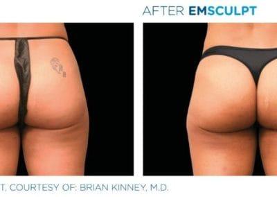Emsculpt_PIC_Ba-card-female-buttock-014_ENUS100