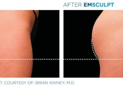 Emsculpt_PIC_Ba-card-female-buttock-016_ENUS100