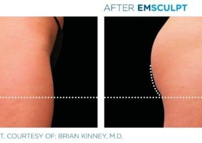 Emsculpt_PIC_Ba-card-female-buttock-016_ENUS100