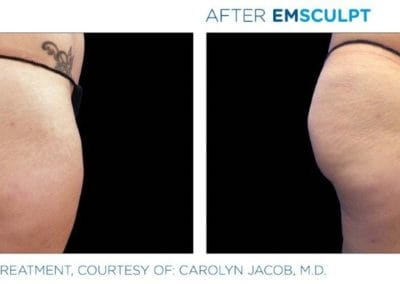 Emsculpt_PIC_Ba-card-female-buttock-017_ENUS100