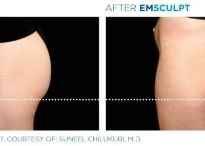 Emsculpt_PIC_Ba-card-female-buttock-020_ENUS100 (002)